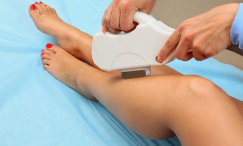 Varicose Veins Treatment In Earlier Stage To Get Rid Of Pain And Discomfort