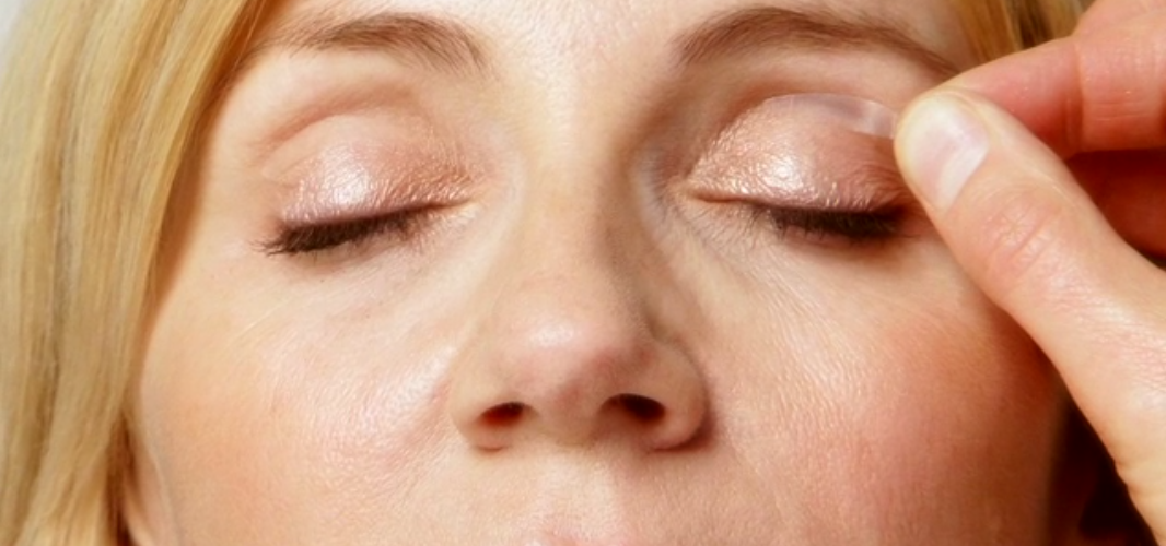 Can Upper Eyelid Surgery Recovery Time Go Long Than What I Expected?